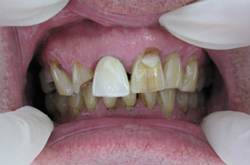 Ferring Dentist Crowns